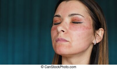The girl with hematomas on a face. Fractional laser. Consequences of the cosmetology procedure. Woman moisturizing face healing drug. Spray