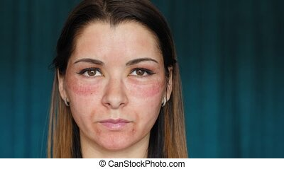 The girl with hematomas on a face. Fractional laser. Consequences of the cosmetology procedure. The woman feels her swollen face.