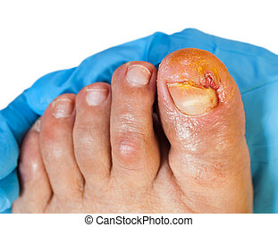 The ingrown toenail - Close up photo of doctor examining the...