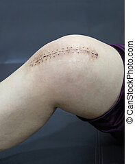 The knee replacement surgery lesions.