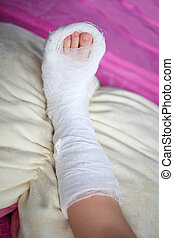 The leg in plaster at the child lies on a pillow