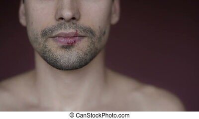 The male herpes on the lip. Using an ointment - Herpes on...