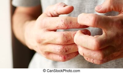 The man scratches his hands. Very itchy fingers, psoriasis