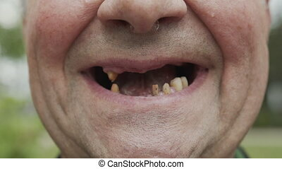 The man teeth fell out, yellow and black teeth hurt. Poor teeth condition, erosion, caries