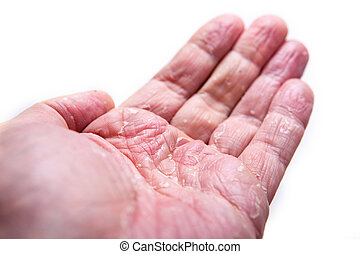The problem with many people - eczema on hand. Isolated...