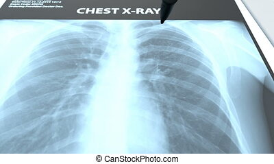 The radiologist examines x-rays images of the patient's lungs and makes a medical conclusion. The x-ray shows inflammation of the lungs. This diagnosis writes in the medical description.