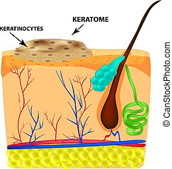 The structure of keratoma. Keratosis. The structure of moles...