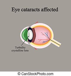 The structure of the eye. Eye cataracts affected. Violations...