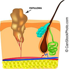 The structure of the papilloma. The structure of the skin. ...