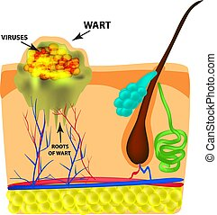 The structure of the wart. The structure of the skin. Infographics. Vector illustration on isolated background.