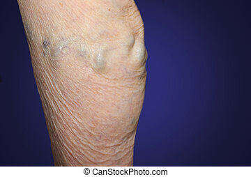 The old age and sick of a woman. Varicose veins on a legs of old woman on blue. The varicosity, spider veins, edema, illness concept. Senior pensioner woman with hands on legs. Blue studio background.