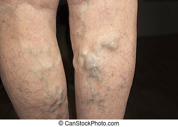 The old age and sick of a woman. Varicose veins on a legs of old woman on blue. The varicosity, spider veins, edema, illness concept. Senior pensioner woman with hands on legs.