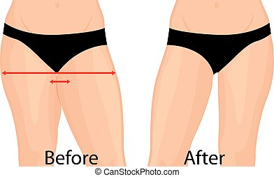 thigs, mujer, antes, cuerpo, corrección, ilustración, liposuction., correction., after., vector, grasa
