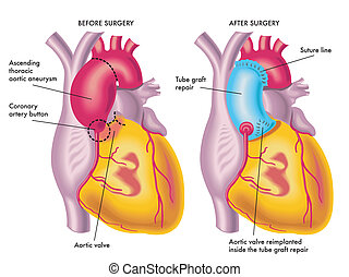 thoracic aortic aneurysm - medical illustration of a...