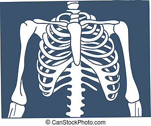 Thorax X-ray picture. - Sketch vector element for medical or...