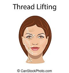 Thread lifting, vector illustration, before after effect...
