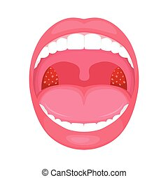 vector illustration of a throat bacterial and viral infection, tonsils inflammation.