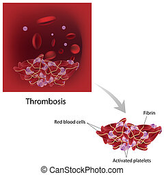 Thrombosis, eps10 - abnormal formation of thrombus, eps10