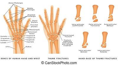 Thumb Fractures. Human hand bones anatomy. Hand - Base of ...
