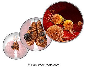 Thymus Cancer Disease
