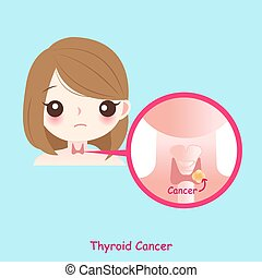 thyroïde, femme, cancer
