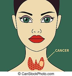 Thyroid cancer in woman