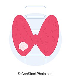 Thyroid cancer signs. Idea of health and medical treatment