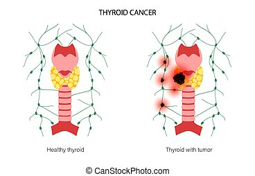 Thyroid cancer stages anatomical poster. Inflammation and pain in thyroid gland and healthy trachea. Neoplasm and tumor in the human endocrine system. Internal organs exam flat vector illustration.