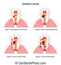 Thyroid cancer stages anatomical poster. Thyroid gland, trachea, lungs and lymph nodes. Inflammation, pain, tumor in the human endocrine system. Internal organs exam medical flat vector illustration.