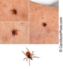 Tick on human skin and one isolated on white - Ixodida...