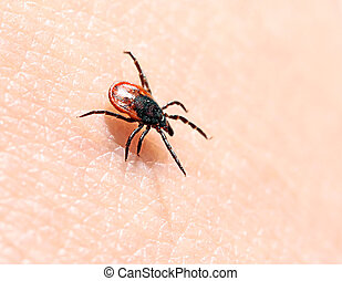 Ticks on human skin.