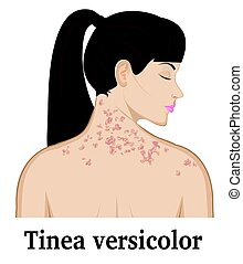 Tinea versicolor on the neck and shoulders of a young girl