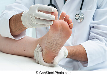 Tinia pedis or Athletes foot - Doctor dermatologist examines...