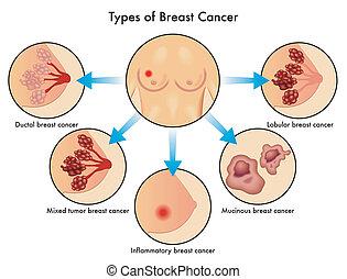 tipos, câncer peito