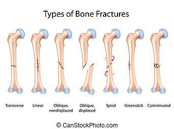 tipos, osso, eps8, fraturas