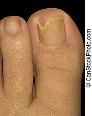 Toe Nail Suffering from Fungus