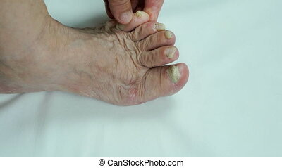 Toenails of woman with fungal infection