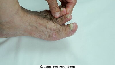 Toenails with fungal infection indoors