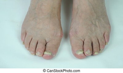 Toenails with fungal infection
