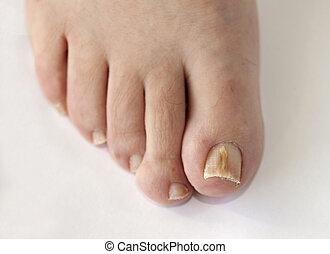 Toes of foot with nail infection - Foot with fungal toe nail...