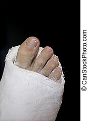 """Toes - Taking the phrase """"break a leg"""" a bit too seriously."""
