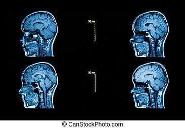 tomografía, cerebro, automatizado, imágenes, serie