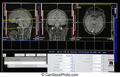 tomographic scan of the head image on  monitor