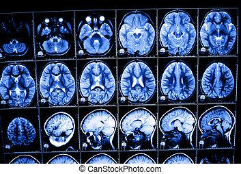 tomography, hersenen, beeld, geberekeend, rontgen