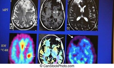 Tomography