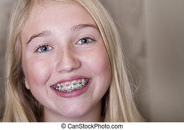 tonåring flicka, med, hängslen, på, henne, tänder
