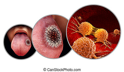 Tongue cancer medical concept or squamous cell carcinoma as malignant tumor disease in the mouth with 3D illustration elements.