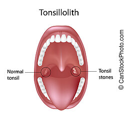 Tonsil stones, eps8 - Tonsil stones causing bad breath