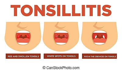 Tonsillitis red and swollen tonsils white spots - Red and...