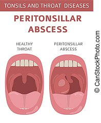 Tonsils and throat diseases. Peritonsillar abscess symptoms,...